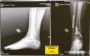 broken ankle lawsuit personal injury