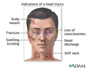 Indications of a Head Injury